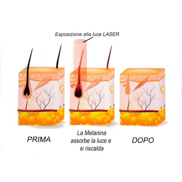 Laser epilazione definitiva